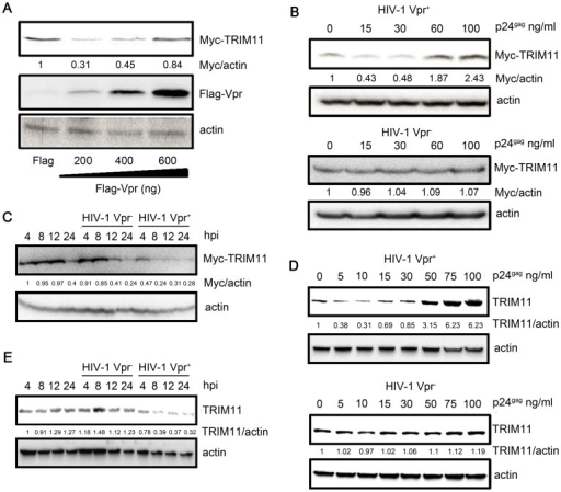 Effects of Vpr on TRIM11 protein levels.A. HEK293 cells were cotransfected with TRIM11 expression plasmids and increasing amounts of Vpr expressing plasmids for 24 h and cell lysates were immunoblotted with the indicated antibodies. B, D. HEK293 cells that were transfected with TRIM11-expressing plasmids (B) for 24 h or not (D) were inoculated with increasing amounts of HIV-1 Vpr− or HIV Vpr+ virus. Cell lysates were immunoblotted with the indicated antibodies at 12 hpi (B) or 24 hpi (D). C, E. HEK293 cells that were transfected with TRIM11-expressing plasmids (C) for 24 h or not (E) were inoculated with 20 ng/ml (p24gag) of HIV-1 Vpr− and HIV-1 Vpr+ viruses for different periods of time. Cell lysates were immunoblotted with the indicated antibodies. The numbers under each line display the relative ratios between the Myc or TRIM11 signals and actin signals. Representative results from three separate experiments are shown.