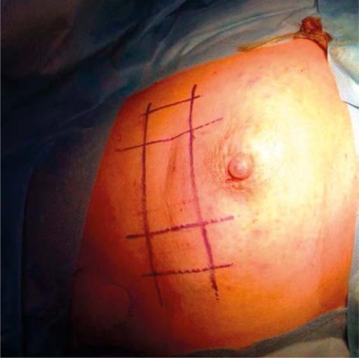 Projection of the seroma on the skin