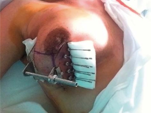 Picture of another implant in the outer quadrants