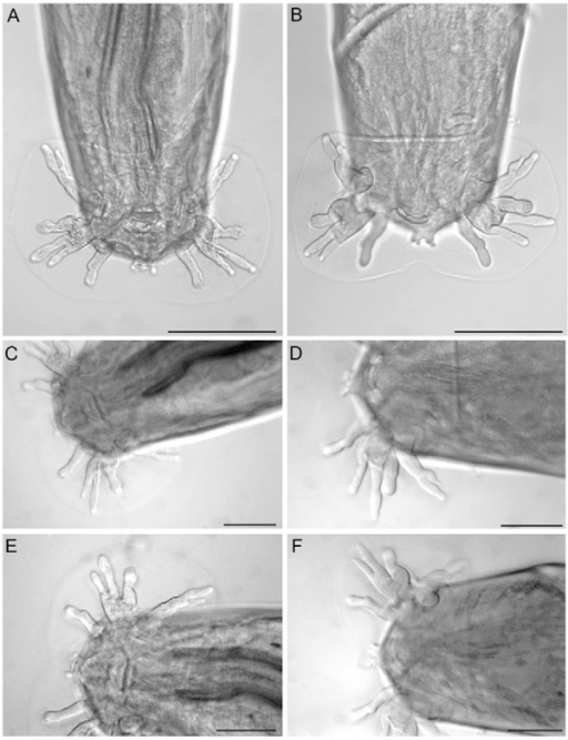 : light microscopy of Angiostrongylus cantonensis. A: ac8haplotype; B: ac9 haplotype, dorsal view of caudal bursa; C: ac8 haplotype; D:ac9 haplotype, right lobe of caudal bursa; E: ac8 haplotype; F: ac9 haplotype,left lobe of caudal bursa. Arrows indicate the differences in the level ofbifurcations at the lateral rays of caudal bursa. Bar = 50 µm.