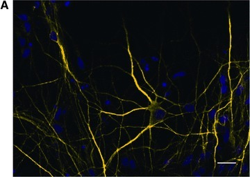 Neuronal network of glutamatergic pyramidal-like neurons from hES cells. Human neurons derived from ES cells after 32 days of differentiation in vitro: they formed an extensive network, where the majority of cells are pyramidal-like neurons (A) expressing the neurotransmitter glutamate (B); staining for the neuronal marker tau (A—yellow) and glutamate (B—green); blue Hoechst 33342 nuclear staining. Scale bar: 20 μm.