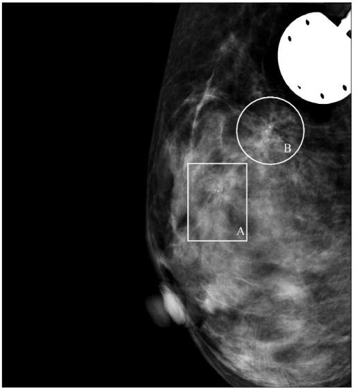 Mammographic image of the breast showing 2 groupings (A and B) of microcalcifications in the upper medial aspect of the right breast.