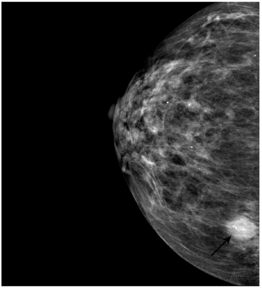 Mammographic image of the breast showing highly vascular spiculated hypoechoic mass measuring 1.35 cm × 1.46 cm × 1.22 cm (arrow).