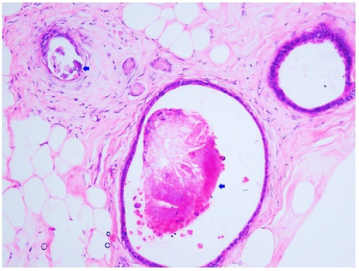 Metastatic colonic glands show intraglandular microcalcifications (arrow) (Hematoxylin and Eosin stain, 200x magnification).