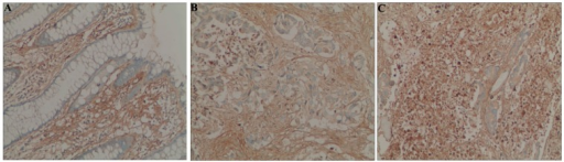 Immunohistochemical staining of POSTN protein in colorectal cancer and normal mucosa cells (original magnification, ×200). (A) POSTN is negative in normal colorectal mucosa; (B) Low levels of POSTN expression in colorectal cancer cells; and (C) High levels of POSTN expression in colorectal cancer cells.