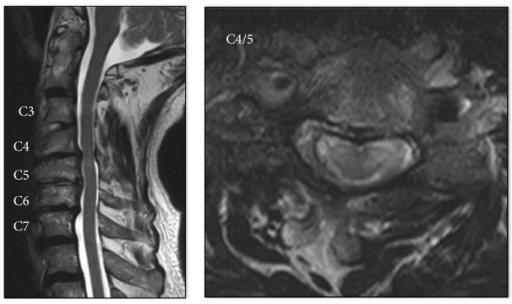 Magnetic resonance image showing C3–C7 degenerative spondylosis with mild central canal stenosis and high-signal lesions at C4/5.