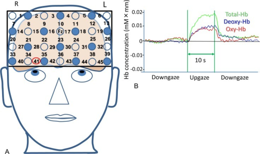 Measurement of hemodynamic changes in the prefrontal cortex with functional near-infrared spectroscopy.(A) Headgear with 28 mounted probes for 45 recording channels is securely placed on the scalp overlying mainly the prefrontal area while participants performed the 60° upgaze. The light-detection probe between channels 16 and 17 was located on the Fz, and the lowest probes were positioned along the Fp1–Fp2 line. (B) Typical concentration changes in deoxyhemoglobin (Deoxy-Hb), oxyhemoglobin (Oxy-Hb), and total hemoglobin (Total-Hb) during the 10-s 60° upgaze task at channel 41.