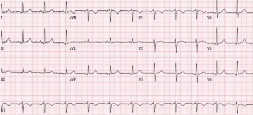 Electrocardiogram done 1-year prior demonstrating normal sinus rhythm at 78 beats per minute