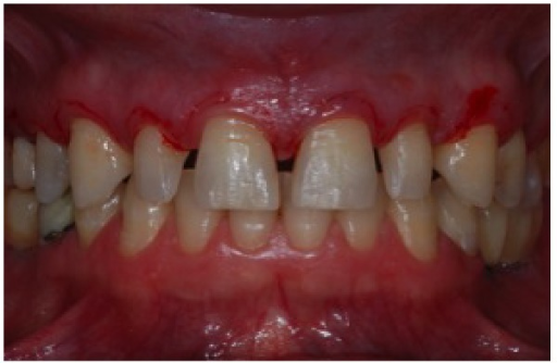 Register of new gingival margin with scalpel.