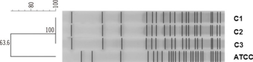 Pulsed field gel electrophoresis (PFGE) was performed by using the CHEF-DRII System (Bio-Rad, Hercules, CA, USA) at 6 V/cm for 20 hr at 10℃, with initial and final pulse times of 0.5 sec and 30 sec, respectively. XbaI was the restriction enzyme used. All three clinical isolates from our hospital (hospital C) exhibited 100% identical PFGE banding patterns. This finding suggests that sequentially identified B. petrii were the same strains. Lane C1-3, Bordetella petrii isolated from patient's wound; ATCC, ATCC DSM 12804.