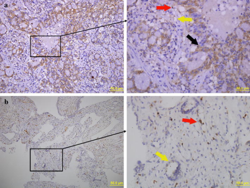 Representative images from immunohistochemical staining. In lung adenocarcinoma tissue (a), an increase in PZ staining (brown) is observed. The black arrow indicates the cytoplasmic expression of PZ, while the red arrow and yellow arrow indicates the presence of PZ protein in macrophages and endothelial cells, respectively. Scale bar 50 μm. b PZ protein was not expressed in the cytoplasm of cells in healthy lung tissue. The positively stained cells are macrophages (red arrow) and endothelial cells (yellow arrow). Scale bar 50 μm