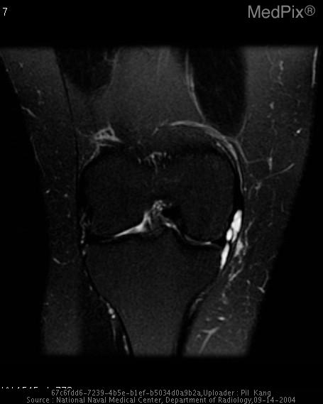 Large, multiloculated cystic lesion adjacent to the anterior aspect of the medial meniscus insinuating into the tibial collateral bursa and anteriorly into the Hoffa's fat pad.