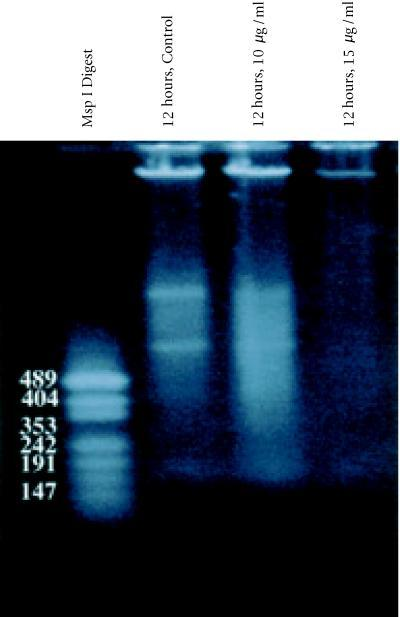 Agarose gel (0.8%) of DNA extracted from BB-88 cells: Lane 1, KB Ladder; Lane 2, Control (12 hours); Lane 3, tamoxifen treatment (12 hours, 10 μg/ml); Lane 4, tamoxifen treatment (12 hours,15 μg/ml). Only a faint DNA smearing is visible in the 15 μg/ml treatment group.