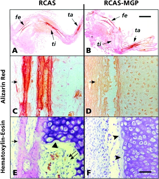 Histological analyses of the effects of MGP overexpression on limb long bone development. In the control limb, femur (fe), tibia (ti), and tarsal (ta) elements display normal elongated morphology (A). Their diaphyses stain positively with alizarin red (A), are surrounded by an intramembranous bone collar (C and E, arrow), and display fully hypertrophic chondrocytes (E, arrowhead) and invading marrow cells (E, double arrow). In RCAS-MGP limb, tibia is completely cartilaginous and does not stain with alizarin red (B); its diaphysis lacks both a bone collar (D, arrow) and fully hypertrophic chondrocytes (F, arrowheads). Bars (A and B) 2.5 mm; (C–F) 80 μm.