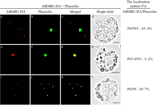Colocalization of phaseolin with AtRMR1-HA. Protoplasts were transformed with phaseolin together with AtRMR1-HA, and localization of both of these proteins was examined by immunostaining with antiphaseolin and anti-HA antibodies. To quantify the localization patterns of AtRMR1-HA and phaseolin, the protoplasts were counted based on their immunostaining pattern. More than 100 protoplasts were counted for each protein. Three independent experiments were performed to obtain means and SEM. PS, small punctate staining pattern; PSV, disc pattern. Bars, 20 μm.