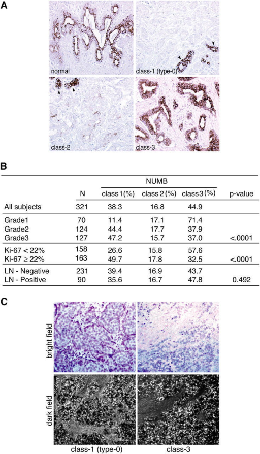 Numb expression in human mammary tumors. (A) The typical immunoreactivity for Numb in normal breast (normal) showed intense staining in the vast majority of ductal (luminal) and lobular epithelial cells, with a prominent membranous staining pattern. Examples are shown of typical class-1(type-0), class-2, and class-3 tumors. Arrowheads point to normal glands within the context of the tumors. (B) Correlation between Numb status and clinical-pathological features. Details and explanations are in Table S1, available at http://www.jcb.org/cgi/content/full/jcb.200406140/DC1. Ki67, proliferative index; LN, lymph nodes. P value was obtained using the Mantel-Haenszel Chi square statistics. (C) In situ hybridization with an antisense probe for Numb mRNA was performed on paraffin sections. Control hybridizations with a corresponding sense probe gave no signal (not depicted). Examples of matching bright fields (top) and dark fields (bottom) of class-1 (left) and class-3 (right) tumors are shown. Numb transcripts appear as bright spots in the dark fields (bottom).