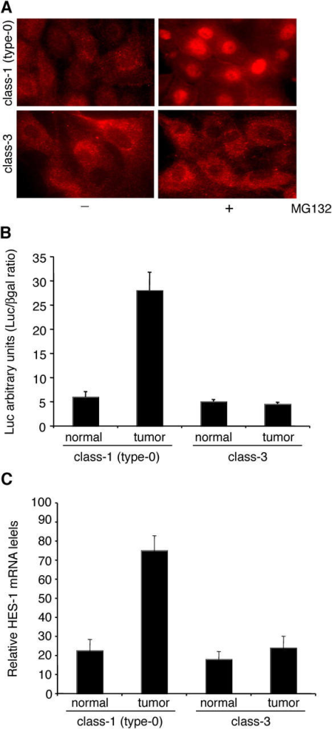 Increased Notch signaling in Numb-negative tumors. (A) Primary tumor cells from class-1(type-0) (top) and class-3 (bottom) patients were treated with MG132 (+) or mock treated (−) for 1 h and stained with anti-Notch. Note the lower basal levels of Notch expression in class-1 MG132-untreated cells and the presence of nuclear Notch in the same class upon MG132 treatment. (B) CBF1-responsive reporter gene activity was evaluated in normal and tumor cells from class-1(type-0) and class-3 patients. (C) HES-1 mRNA expression in total RNAs from normal and tumor cells from class-1(type-0) and class-3 patients. In B and C, the mean fold induction (± SD) from two independent experiments performed in triplicate is shown. In all panels, results are representative of those obtained with primary cultures from three class-1(type-0) and three class-3 patients (not depicted).