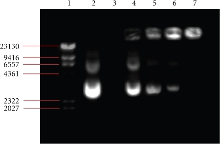 Agarose gel electrophoresis of NP/DNA complexes. Lane 1: DNA molecular weight marker; lane 2: naked plasmid DNA; lane 3: chitosan-coated PBCA-NPs; lanes 4–7 correspond to DNA with progressively increasing proportions of NPs at the charge ratio of 5:1, 10:1, 15:1, and 30:1 (w/w), respectively.