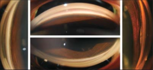 Preoperative gonioscopy pictures showing a 360-degree angle recession
