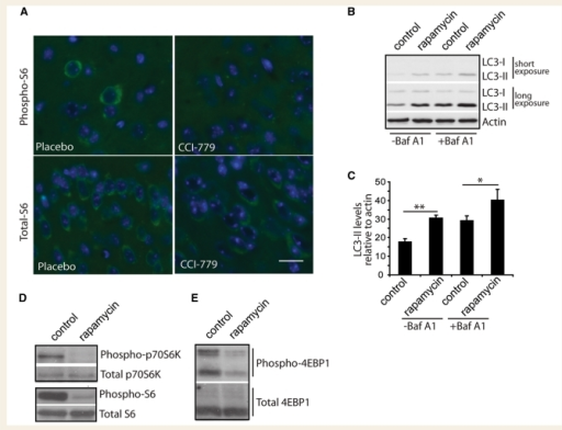 Temsirolimus inhibits the mTOR pathway in vivo, as rapamycin does in cultured primary neurons. (A) Sections from mouse brains treated with either temsirolimus (CCI-779) or placebo were immunostained for phosphorylated S6 protein (Phospho-S6, top panels) or total S6 protein (bottom panels), nuclei were counterstained with 4′,6-diamidino-2-phenylindole (DAPI; blue). Total S6 immunoreactivity was seen in the perinuclear region of all cells. In placebo treated animals some cells stained positive for phosphorylated S6, however, this staining was not seen in sections from animals treated with temsirolimus. Scale bar represents 5 µm and is valid for all panels. In cultured primary neurons, LC3-II levels were assessed by western blot (B). Two different exposures are shown to allow comparison of weaker bands in untreated lanes (−Baf A1) and stronger bands in Bafilomycin A1 (+Baf A1) lanes without saturation. Densitometric quantification of LC3-II levels relative to actin in triplicate experiments is shown in (C). **P < 0.01 and *P < 0.05 by t-test. Effect of rapamycin treatment of phosphorylation of downstream mTOR targets was investigated by western blotting, (D) phosphorylated p70 S6 kinase levels and phosphorylated S6 ribosomal protein and (E) phosphorylated eukaryotic initiation factor 4E-binding-protein (EBP)-1.