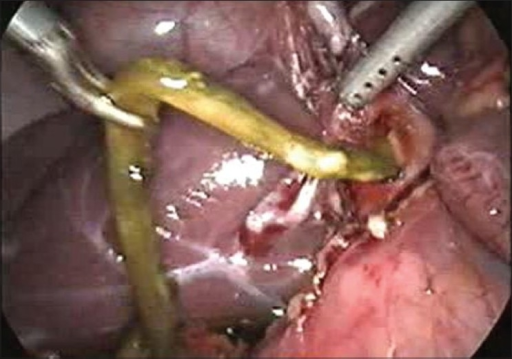 Dead worm being removed from the common bile duct