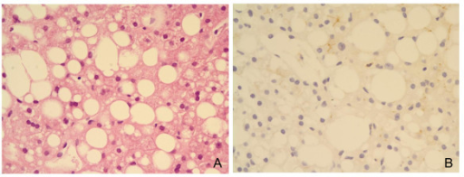 The liver tissue is associated with severe fatty change (A) and it shows a distinct loss of CEACAM1 expression immunohistochemically (B).