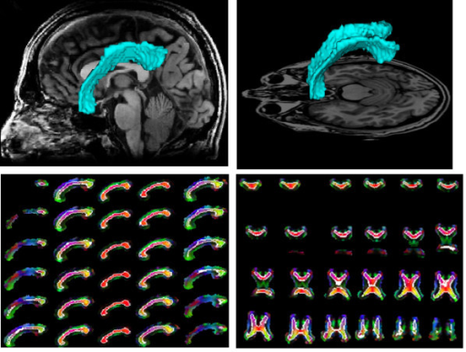 Segmentation results by the proposed method for a normal corpus callosum and its neighbors rotated 30° under the skew angle. (a), (b): Segmented corpus callosum in green overlaid on the T1 sagittal and axial images, respectively. (c), (d): Boundaries of the corpus callosum delineated in white in the sagittal and axial slices, respectively, overlaid on the color coding of the principal diffusion direction in each pixel.