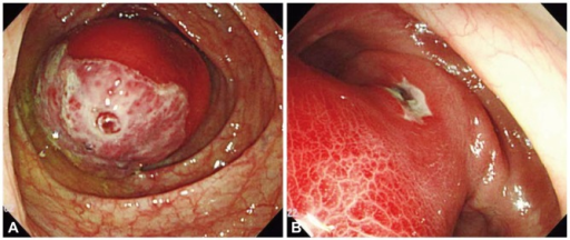 Colonoscopic findings. (A) Huge, round, hyperemic mass covered with superficial ulcer is observed at proximal ascending colon. On the center of ulcer, the exposed vessels are seen. (B) It shows another small ulcer near the base of the mass, and inflammated hyperemic mucosa is seen on the body of the mass.