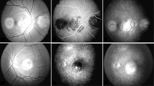 (A, B) Red free fundus photographs of round subretinal, grayish-yellow lesions in temporal macula and nasal parapapillary region of the right eye (ampiginous form of serpiginous coroiditis) and foveal solitary lesion of the left eye (macular form of serpiginous coroiditis). There is also a peripapillary geographic subretinal yellowish lesion present in the right eye. (C, D) Fluorescein angiography, showing early hypofluorescence, (E, F) followed by late leakage in the active areas of both eyes.