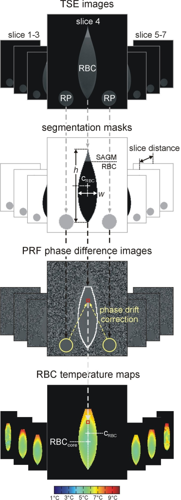 PRF image evaluation flow chart. TSE images were used to segment RBC volume, SAGM and reference phantoms RP. Sample height h and width w and center cRBC = h/2 were determined from the central slice. RBC volume was calculated as sum of segmented RBC areas in the 7 slices multiplied by slice distance. After phase drift correction via medians of reference phantom phases, corrected RBC difference phases φ were recalculated to temperatures, which can be visualized color encoded. Thermal RBC core (RBCcore) was defined as region with minimum temperature in the central slice throughout warm up. It should be noticed, that slices 1 and 7 are slightly noisier than the more central slices because of their close vicinity to the irregular borders of the pouch and the large echo time of 20 ms choosen to increase overall precision of temperature measurements.