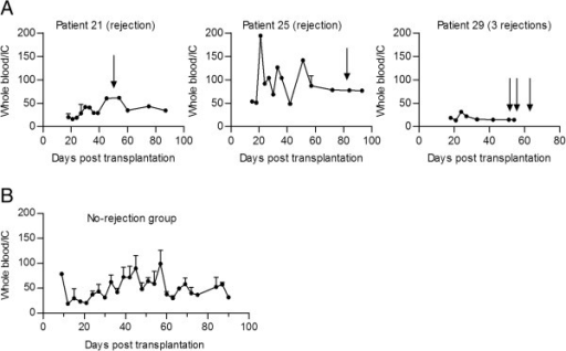 The ratio (± SEM) of whole blood to intralymphocytic CsA trough concentration days after transplantation. (A) The CsA whole blood/intracellular ratio (± SEM) for the three rejection patients. The arrows mark the point where the patients experienced an acute rejection episode. High levels of the ratio represent a drop in intracellular CsA concentration compared to whole blood concentration. (B) The mean whole blood/intracellular ratio (± SEM) for the patients with no rejection.
