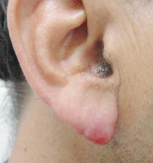 Aspect of the lesion pretreatment: a nodule of fibrous-elastic tissue on the rightear lobe