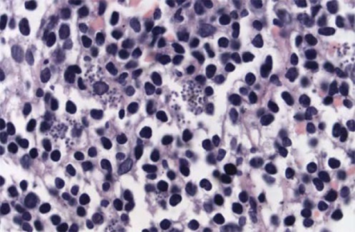 There is a large number of leishmania amastigotes within macrophages.