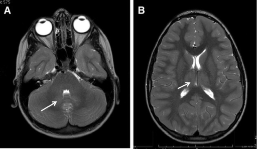Increased T2 signal intensities in dentate nuclei and thalamic regions in brain magnetic resonance imaging (MRI) associated with POLG mutations. Axial T2-weighted MR images from patient 4, who had p.W748S;E1143G + G1205E mutations. There is mildly increased signal intensity (SI) in the region of the dentate nuclei (A, arrow) and diffuse high SI in both thalami (B, arrow). Increased SI in the same areas was also seen on the fluid-attenuated inversion recovery (FLAIR) images but no abnormal findings were detected on the T1-weighted images. No other lesions were seen in this patient and the findings were very similar between the scan at presentation (shown) and a scan done 3 months later.