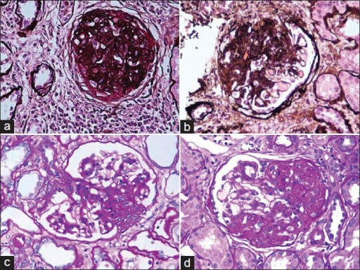 (a) Global glomerulosclerosis. Although this lesion is not required for the diagnosis of focal segmental glomerulosclerosis, it is frequently present in association with segmental glomerulosclerosis in advanced stages of the disease (Silver, ×200). (b) Segmental glomerulosclerosis involving more than half of the glomerulus with the scarring process associated with adhesion formation with Bowman's capsule in the FSGS, not otherwise specified (NOS) variant (Silver, ×200). (c) Tip variant of FSGS involving the tubular pole (periodic acid-Schiff, ×200). (d) The perihilar location of segmental sclerosis in a case of perihilar FSGS (PAS, ×200)
