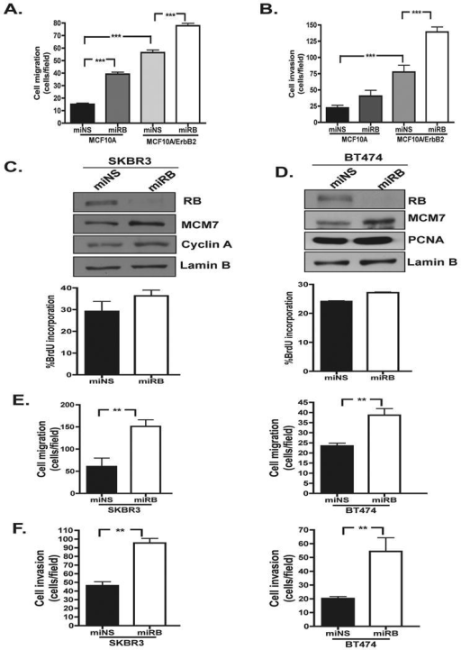 RB loss promotes cell migration and invasion in ErbB2 over expressing cells(A) Cell migration and (B) cell invasion of MCF10A cells harboring ErbB2 over expression and/or RB-deficiency by Boyden Chamber assays; bars, SD. (***P < .0001) (C/D) SKBR3 and BT474 cells transduced with miRB or miNS retroviruses. Cells were harvested and cell lysates were analyzed by immunoblot for the indicated proteins. BrdU incorporation was analyzed by bivariate flow cytometry and data are average of at least three independent experiments; bars, SD. (E/F) Analysis of SKBR3 miNS/miRB and BT474 miNS/miRB cell migration by Boyden Chamber assays; bars, SD. (**P<0.01) (F) Analysis of SKBR3 miNS/miRB and BT474 miNS/miRB cell invasion by Boyden Chamber assays; bars, SD. (**P<0.01).