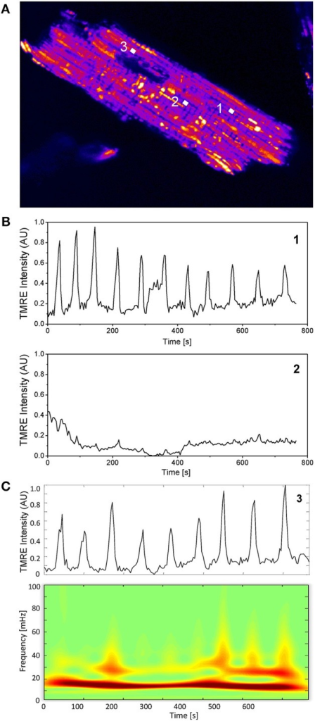 Single mitochondrial signals and wavelet analysis. (A) Mitochondria in cardiac myocytes are densely packed and their individual TMRE signal can be extracted as previously described (Kurz et al., 2010a,b). (B) Two mitochondrial signals with different oscillatory patterns from different locations within the myocyte are shown. (C) Absolute squared wavelet transform over frequency and time of an oscillating mitochondrion. The major frequency component varies between 15 and 20 mHz.