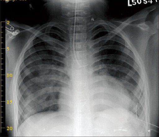 Chest X-ray showing double-lumen tube in situ with improved right lung aeration