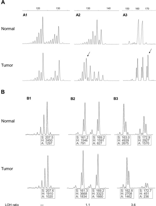 Assessment of microsatellite instability—MSI (a) and loss of heterozigosity—LOH (b) in patients with adult T cell leukemia-lymphoma (ATL).(a1) Tumor sample without allelic shift compared with normal sample (marker D10S191 – case 22). (a2) Patient showing allelic shift in tumor sample indicating the presence of microsatellite instability (D10S191 marker—case 8). (a3) Patient showing a novel allele in tumoral sample indicating the presence of microsatellite instability (marker D11S1391 – case 15). The arrows indicate allelic shift. (b1) The presence of a single peak in both normal and tumor DNA indicates a non informative case for LOH analysis (marker D10S190 – case 1). (b2) The presence of two peaks in normal and tumor DNA indicates an informative case for LOH analysis (marker D11S1391 – case 9). (b3) The decrease in peak height in one of two alleles in tumor DNA indicates allelic imbalance (LOH) (marker DCC – case 12); S, Size of PCR product (in pb); H, Fluorescence intensity of peak; A, area of peak.