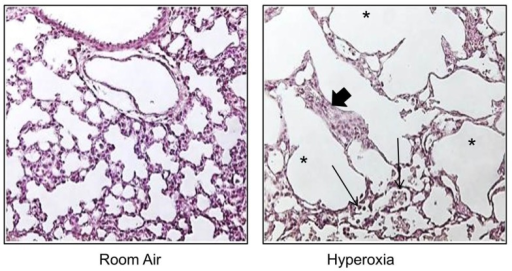Neonatal hyperoxia disrupts postnatal alveolar development in the lung. Representative tissue slides (H&E stains) of newborn mouse lung exposed to room air or 100% oxygen from birth to PN10. Thickened alveolar septae (thick arrow), inflammatory cells (thin arrow), and simplified alveoli (asterisks).