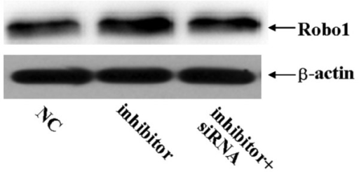 Western blot analysis revealed that the protein expression of Robo1 was significantly increased in miR-218 inhibitor-transfected U87 glioma cells. By contrast, Robo1 siRNA decreased the miR-218 inhibitor-induced increase in Robo1 protein levels. *P<0.05. Robo 1, roundabout, axon guidance receptor, homolog 1; NC, negative control; siRNA, small interfering RNA; miR-218, micro RNA 218.