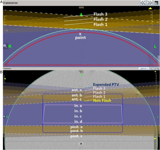 Plan image with Flash 0, 1, 2 and 3, each applied to show the dimension of Flash. (A) Air interface transverse image with Flash applied to PTV-4. Point x refers to the point of interest in the tangential area. (B) PTV rectangle transverse image inside the phantom. The pink contour is the normal PTV and the blue contour is the expanded PTV. Anterior (a, b, c), interior (a, b, c, d) and posterior (a, b, c) are points of comparison.