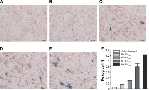 Iron uptake analysis of MDA-MB-231 tumor cells incubated with M-HFn nanoparticles.Notes: Prussian blue staining of MDA-MB-231 tumor cells incubated for 24 hours with (A) no nanoparticles, (B) M-HFn1000, (C) M-HFn3000, (D) M-HFn5000, and (E) M-HFn7000. (F) Iron contents in single cell are 0.16 pg cell−1, 0.29 pg cell−1, 0.80 pg cell−1, and 1.23 pg cell−1 after incubation with M-HFn1000, M-HFn3000, M-HFn5000, and M-HFn7000, respectively, for 24 hours (statistical comparison of iron contents in single cell with cell-only yielded P=0.014, 0.002, 0.011, and 0.023 for M-HFn1000, M-HFn3000, M-HFn5000, and M-HFn7000, respectively).Abbreviation: M-HFn, ferrimagnetic H-ferritin.