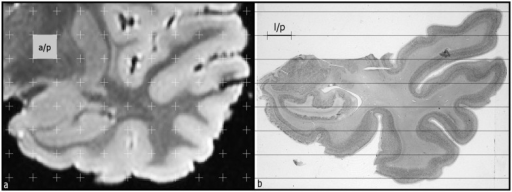 (a) MRI of the temporal lobe. A test system of regularly spaced points is superimposed for the estimation of volume of different structures. The number of points that hit the structure result in the volume, according to the formulae presented in Methods. The area associated to test point is showed (a/p). (b) Histological section stained with thionin at a roughly the same level as in a MRI image, where horizontal lines were superimposed to estimate the intercepts between test lines and each structure of interest (outline of the white matter, grey matter-surface area of the temporal lobe-, profiles of the amygdala, hippocampus and lateral ventricle). The length of test line associated with a test point is also represented.