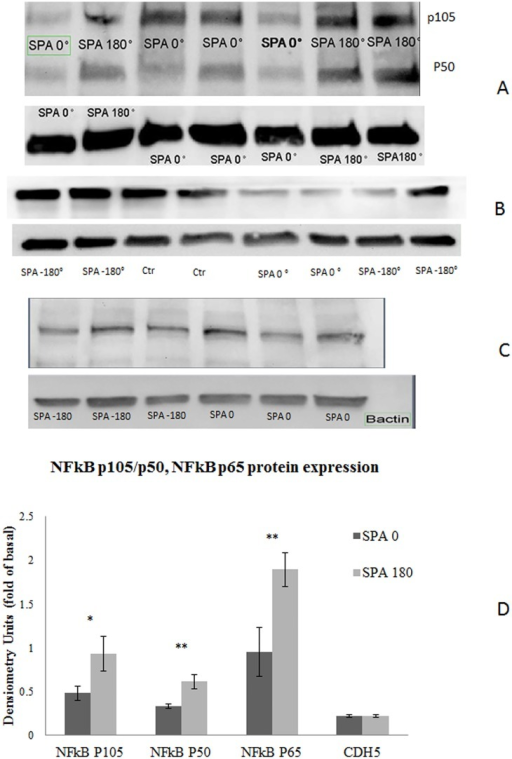 SPA modulates the protein expression levels of NFkB p105/p50 and NFkB p65 but does not affect CDH5.BAEC monolayer were exposed to WSS and CS with either SPA = 0 or SPA = -180 during 7 hours. Cell lysates from different samples (n = 6 each condition) were separated in gradient SDS-PAGE, and the proteins were transferred to nitrocellulose membranes. Nitrocellulose membranes were split into two parts for immunoblotting with NFKB p105/p50 or NFkB p65 using βactin as the endogenous control. Representative blots are shown in Fig 6. Samples were analysed by densitometry and normalized by the βactin control; then the relative protein expressions at SPA = -180 and SPA = 0 were compared. The bar graphs in (A) represent the quantification of 6 individual experiments (mean ± SEM). SPA = -180 increases the expression of NFκB p50 by 1.9 fold compared to SPA = 0 (p = 0.001) and the expression of NFκB p105 by 1.98 fold (p = 0.058). The bar in (B) suggest that SPA = -180 increase the expression of the transcriptional factor NFKB p65 (n = 8) by 1.98 fold (p = 0.002) (ANOVA, all p<0.05). SPA did not affect the CDH5 protein expression levels (n = 3 for each condition) (ANOVA p>0.05) as shown in panel B.
