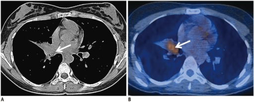 Chest CT and PET/CT results for 17-year-old female with PMEC in low SUV group.A. In CT image, 14 mm intraluminal nodule (arrow) obliterated lumen of right middle lobar bronchus and protruded into lumen of intermediate bronchus. B. SUVmax of tumor in PET/CT was 4.2 (arrow) and pathologic result verified stage IA low grade PMEC. CT = computed tomography, PET/CT = positron emission tomography/computed tomography, PMEC = pulmonary mucoepidermoid carcinoma, SUV = standardized uptake value, SUVmax = maximum SUV