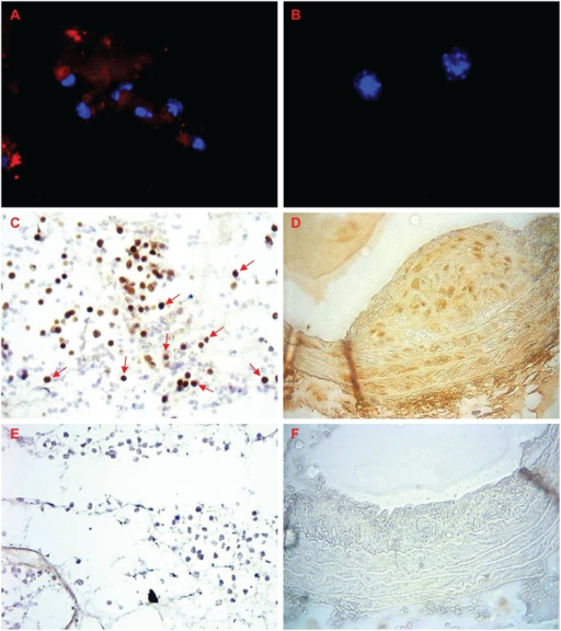 CTGF in sponges and arteries from mice.CTGF (red) is present in A) in FCMs, but not B) NFMs isolated from sponges. Blue = nuclei (DAPI). CTGF (brown) is present in C) FCMs in sponge sections or; D) throughout the plaque, media and adventitia of a brachiocephalic artery from a fat-fed ApoE  mouse. E) sponge section negative control; F) negative control in a section from a brachiocephalic artery plaque. Magnification x 200 (C, E), x 400 (A, B, D, F).