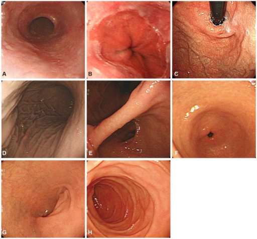 Essential photographing sites. (A) Upper esophagus. (B) Lower esophagus. (C) Gastric cardia and fundus. (D) Upper body. (E) Gastric angle. (F) Gastric antrum. (G) Duodenal bulb. (H) Duodenal second portion.