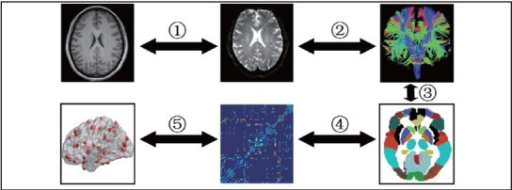 Flowchart of brain white matter (WM) structural network construction for patients withschizophrenia and healthy controls