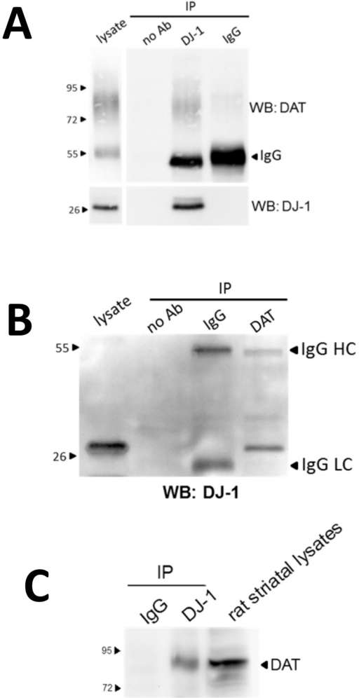 Association of DJ-1 with DAT.(A) Co-immunoprecipitation of DAT with DJ-1 was performed by incubating 500 μg of solubilized HEK-293T cells that were co-transfected with DAT and DJ-1 with 2 μg of DJ-1 antibodies or with 2 μg of mouse IgG controls. 500 ng of HEK-293T lysate was used as a positive control. The top panel shown co-immunoprecipitation of DAT with DJ-1 and the lower panel confirms immunoprecipitation of DJ-1. (B) Co-immunopreciptation of DJ-1 with DAT. 500 μg of lysates from HEK-293T co-expressing DAT and DJ-1 was incubated with 2 μg of DAT antibodies or with 2 μg of rat IgG control antibody. Five μg of HEK-293T lysate was used as a positive control. Although we use antibodies from different species for the immunoprecipitation and the western blot, there is still some crossreactivity that leads to the detection of IgG bands in the resulting immunoblots (IgG HC—heavy chain; IgG LC–light chain). (C) Co-immunoprecipitation of DAT with DJ-1 from solubilized rat striatal tissue. 750 μg of striatal tissue was immunoprecipitated with DJ-1 antibody. Resulting immunoprecipitates were run on SDS-PAGE, transferred to PVDF membranes, and blotted with DAT monoclonal antibodies.